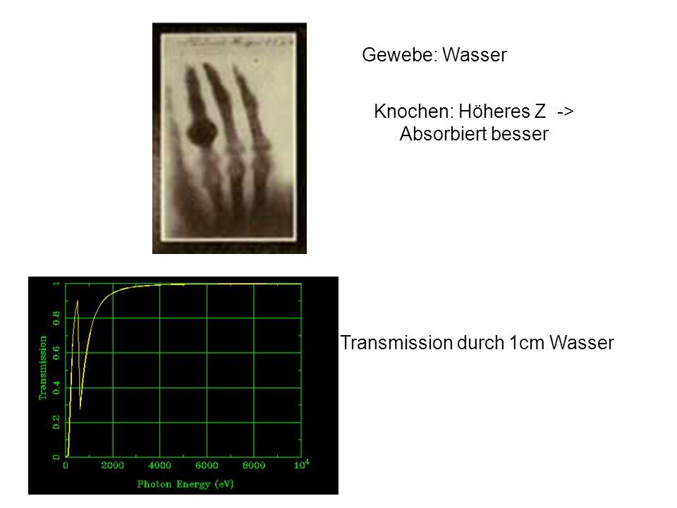 Gewebe: Wasser Knochen: Höheres Z -> Absorbiert besser Transmission durch 1cm Wasser