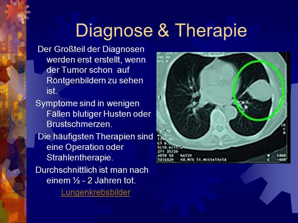 Diagnose & Therapie Der Großteil der Diagnosen werden erst erstellt, wenn der Tumor schon auf Röntgenbildern zu sehen ist. Symptome sind in wenigen Fä