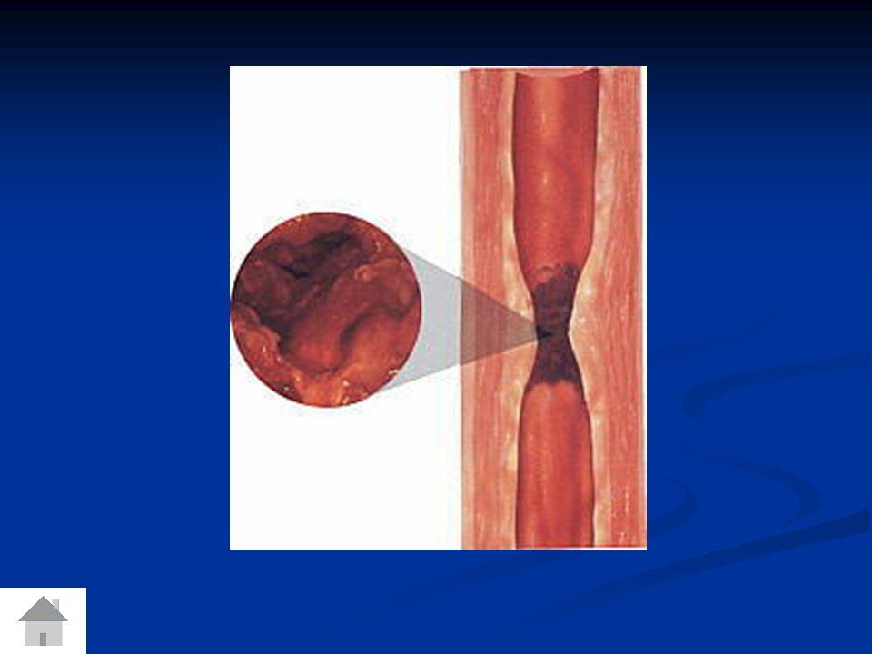 Herzklappenfehler Man unterscheidet bei den Herzklappenfehlern zwischen der Klappeninsuffienz und Man unterscheidet bei den Herzklappenfehlern zwischen der Klappeninsuffienz und KlappenstenoseKlappeninsuffienz Klappenstenose Es gibt verschiedene Ursachen für einen Herzklappenfehler: - Herzinfarkt bei dem Teile Es gibt verschiedene Ursachen für einen Herzklappenfehler: - Herzinfarkt bei dem Teile des Herzens absterben des Herzens absterben - Bakterielle oder virile - Bakterielle oder virile Infektionen Infektionen