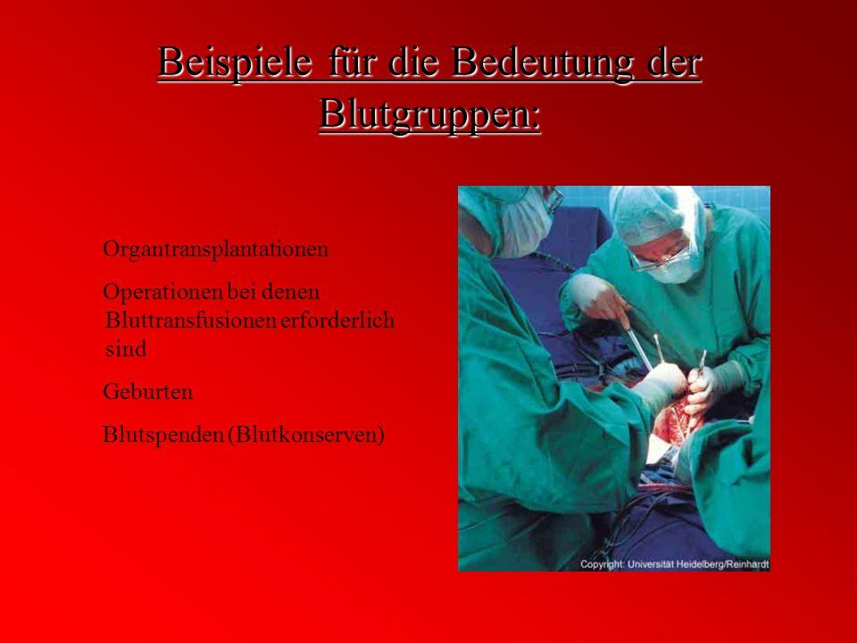 Beispiele für die Bedeutung der Blutgruppen: Organtransplantationen Operationen bei denen Bluttransfusionen erforderlich sind Geburten Blutspenden (Bl