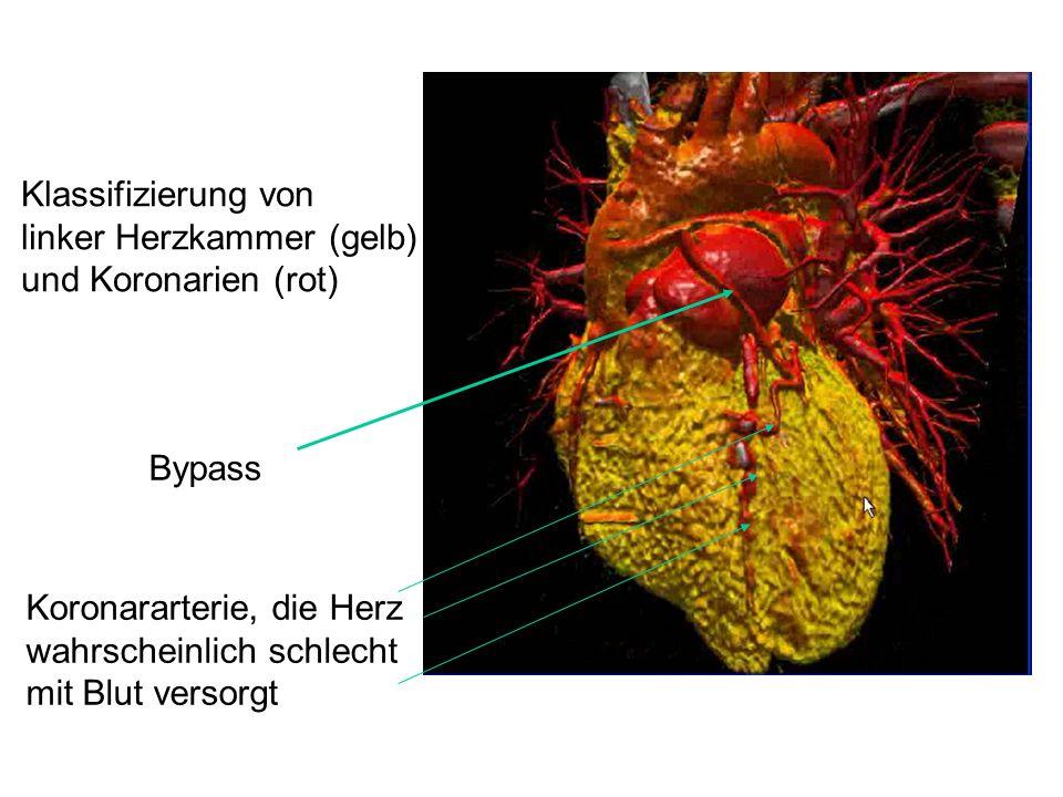 Klassifizierung von linker Herzkammer (gelb) und Koronarien (rot) Bypass Koronararterie, die Herz wahrscheinlich schlecht mit Blut versorgt
