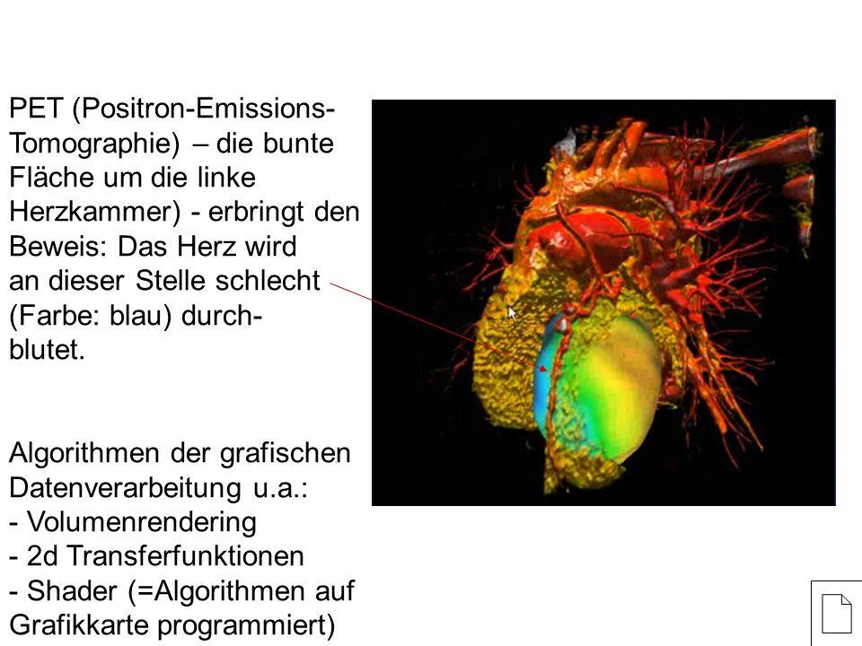 PET (Positron-Emissions- Tomographie) – die bunte Fläche um die linke Herzkammer) - erbringt den Beweis: Das Herz wird an dieser Stelle schlecht (Farbe: blau) durch- blutet.