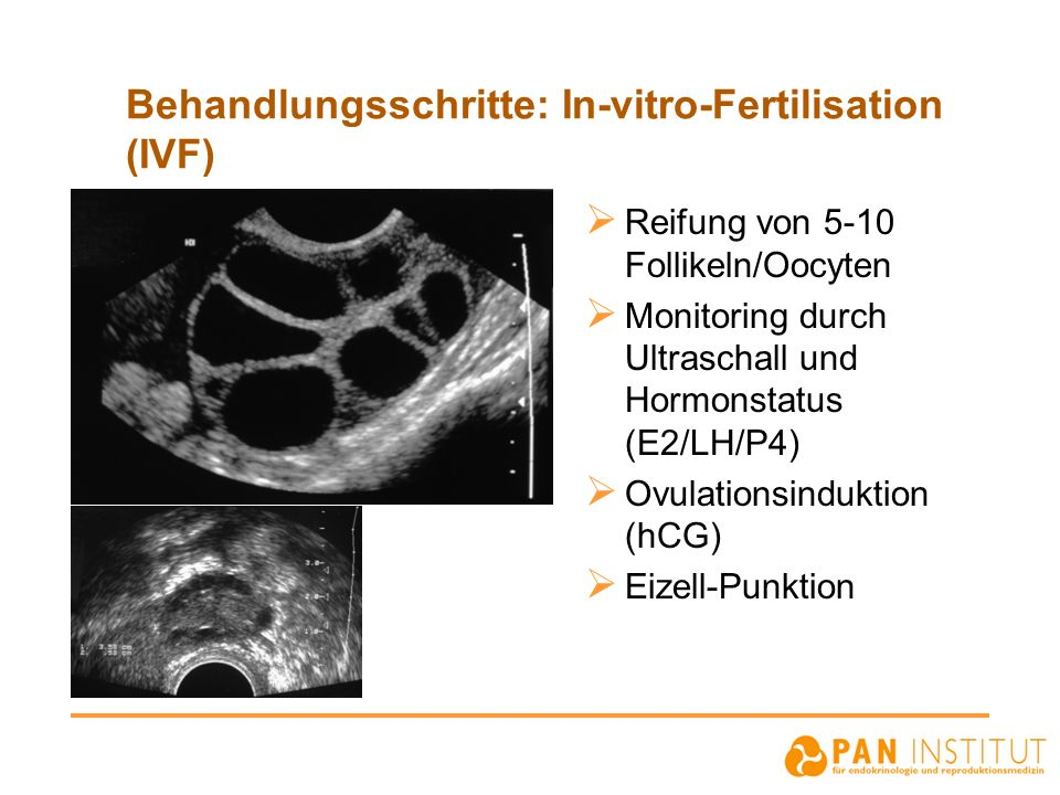 Behandlungsschritte: In-vitro-Fertilisation (IVF) Reifung von 5-10 Follikeln/Oocyten Monitoring durch Ultraschall und Hormonstatus (E2/LH/P4) Ovulationsinduktion (hCG) Eizell-Punktion