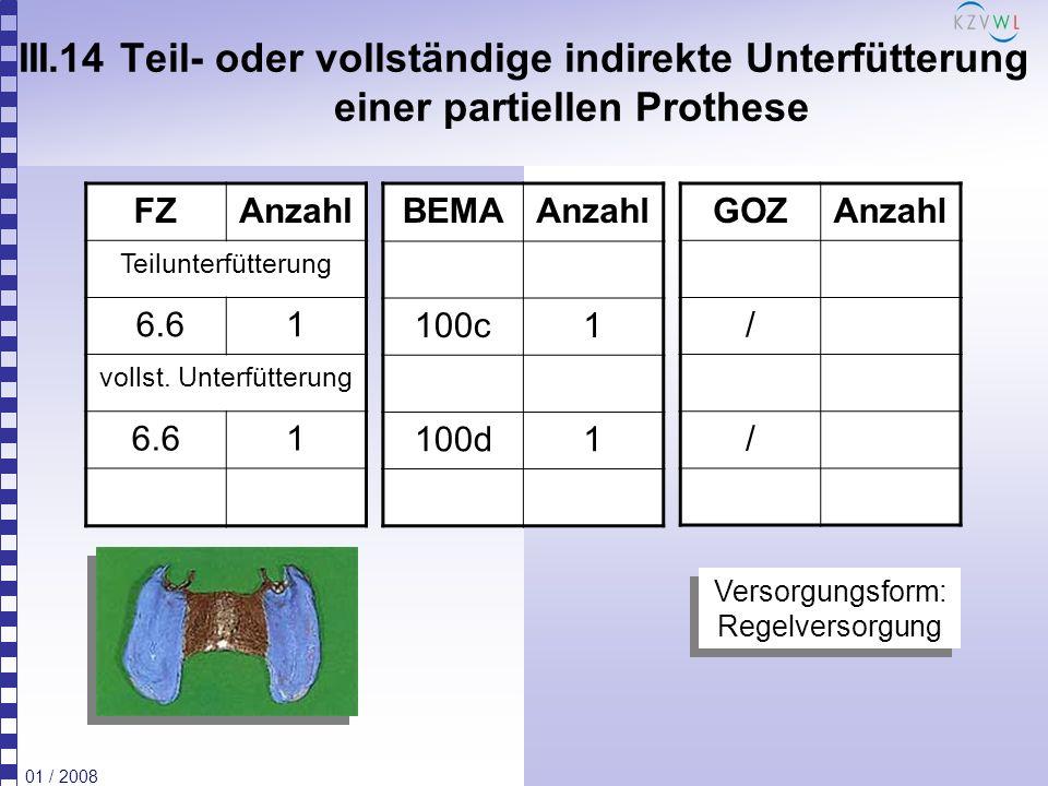 01 / 2008 IV.10 Erneuerung nicht richtlinienkonformes Primärteleskop FZAnzahl 6.101 BEMAAnzahl / GOZAnzahl 5041 5091 Laut Auffassung der KZBV kann der Festzuschuss 6.10 für alle erneuerungsbedürftigen Primär-/Sekundärteleskopkronen gewährt werden, jedoch liegt nur bei Befundlage 3.2 oder 4.6 eine Regelversorgung vor.