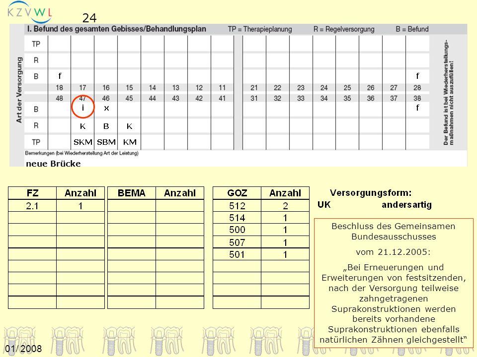 01/ 2008 neue Brücke 24 Beschluss des Gemeinsamen Bundesausschusses vom 21.12.2005: Bei Erneuerungen und Erweiterungen von festsitzenden, nach der Ver