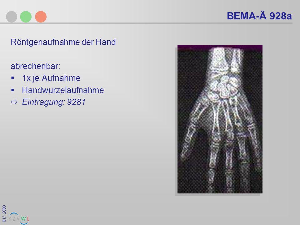 01/ 2008 BEMA-Ä 928a Röntgenaufnahme der Hand abrechenbar: 1x je Aufnahme Handwurzelaufnahme Eintragung: 9281