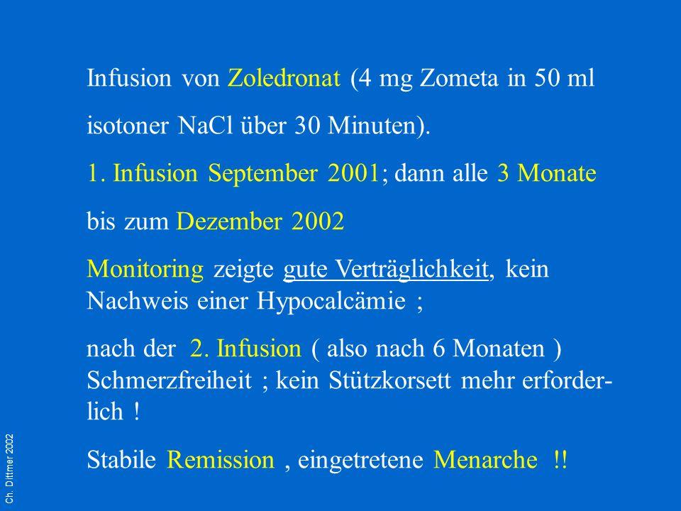 Ch. Dittmer 2002 Infusion von Zoledronat (4 mg Zometa in 50 ml isotoner NaCl über 30 Minuten). 1. Infusion September 2001; dann alle 3 Monate bis zum
