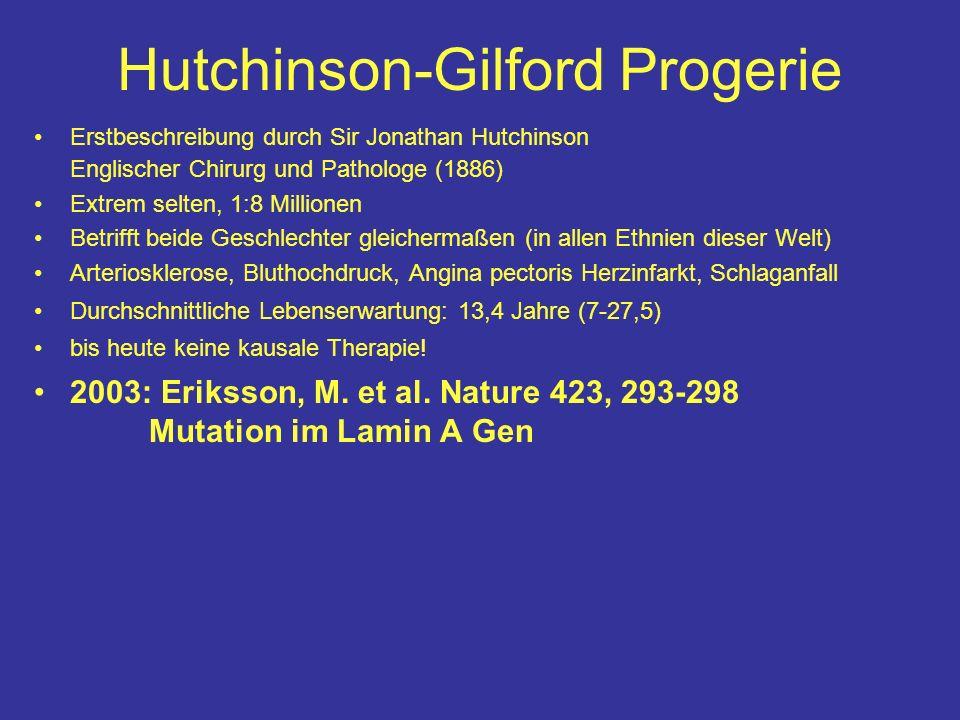 Hutchinson-Gilford Progerie Erstbeschreibung durch Sir Jonathan Hutchinson Englischer Chirurg und Pathologe (1886) Extrem selten, 1:8 Millionen Betrif