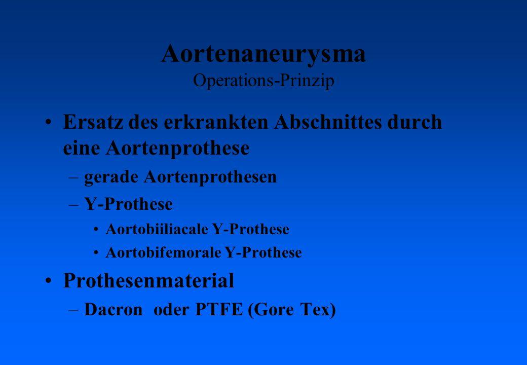 Aortenaneurysma Operations-Prinzip Ersatz des erkrankten Abschnittes durch eine Aortenprothese –gerade Aortenprothesen –Y-Prothese Aortobiiliacale Y-Prothese Aortobifemorale Y-Prothese Prothesenmaterial –Dacron oder PTFE (Gore Tex)