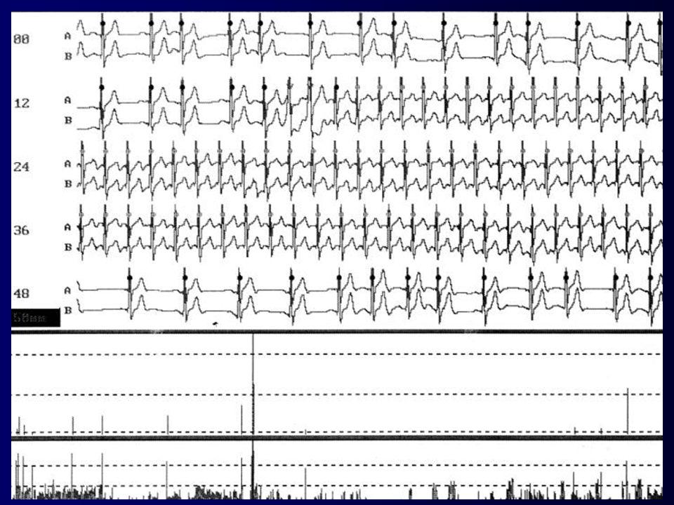 Tachykarde HRST schmaler regelmäßiger QRS Atriale Vorhoftachykardie HF:100-150/min P-Zacke:oft vorhanden, meist unterschiedliche Konfiguration zur P-Z