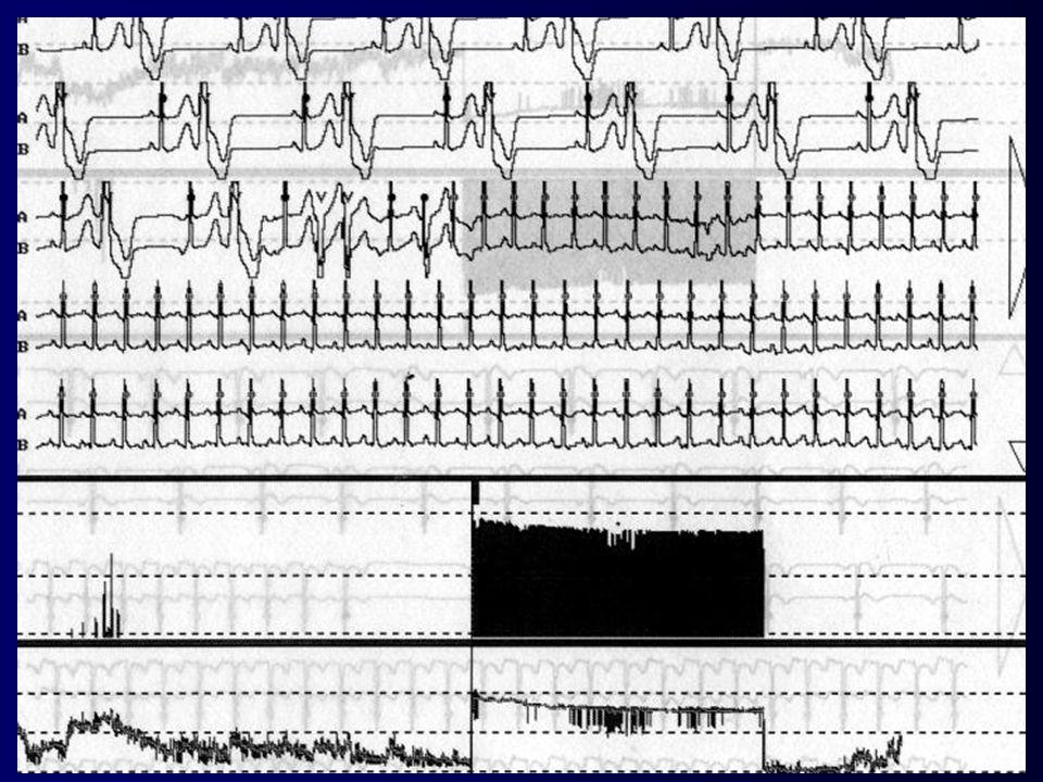 Tachykarde HRST schmaler regelmäßiger QRS Vorhofflattern mit regelmäßiger Überleitung Kammerfrequenz : je nach Überleitung (bei 2:1 Überleitung z. B.