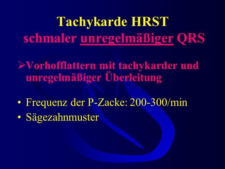 Tachykarde HRST schmaler unregelmäßiger QRS Vorhofflattern mit tachykarder und unregelmäßiger Überleitung Frequenz der P-Zacke:200-300/min Sägezahnmuster