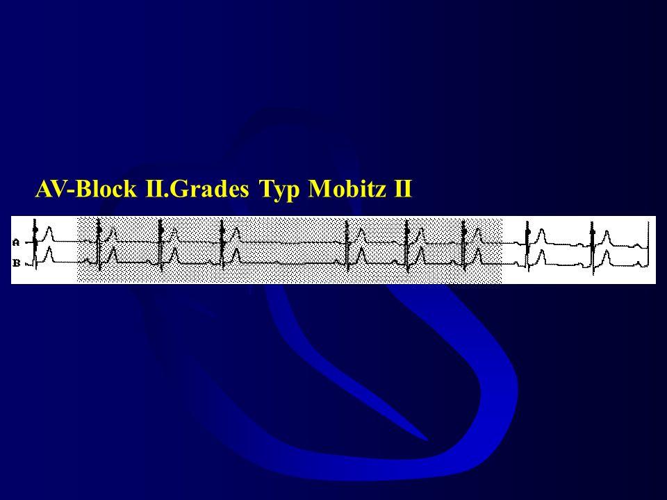 bradykarde HRST AV-II° Typ Mobitz 1 (Wenckebach) -AV-Knoten-Block -von Schlag zu Schlag schlechtere Leitung -vagaler Einfluss -gute Prognose -nicht sc