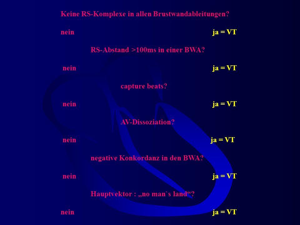 Therapeutische Überlegungen Grundsatz für V-Tachy sprechen folgende 4 Kriterien 1. Kriterium nach Brugada In keiner der 6 Brustwandableitungen findet