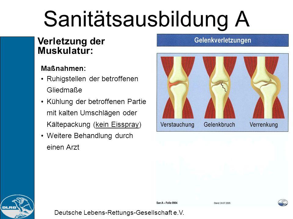 Deutsche Lebens-Rettungs-Gesellschaft e.V. Sanitätsausbildung A Verletzung der Muskulatur: Erkennen: Schmerzen in der betroffenen Extremität Bewegungs