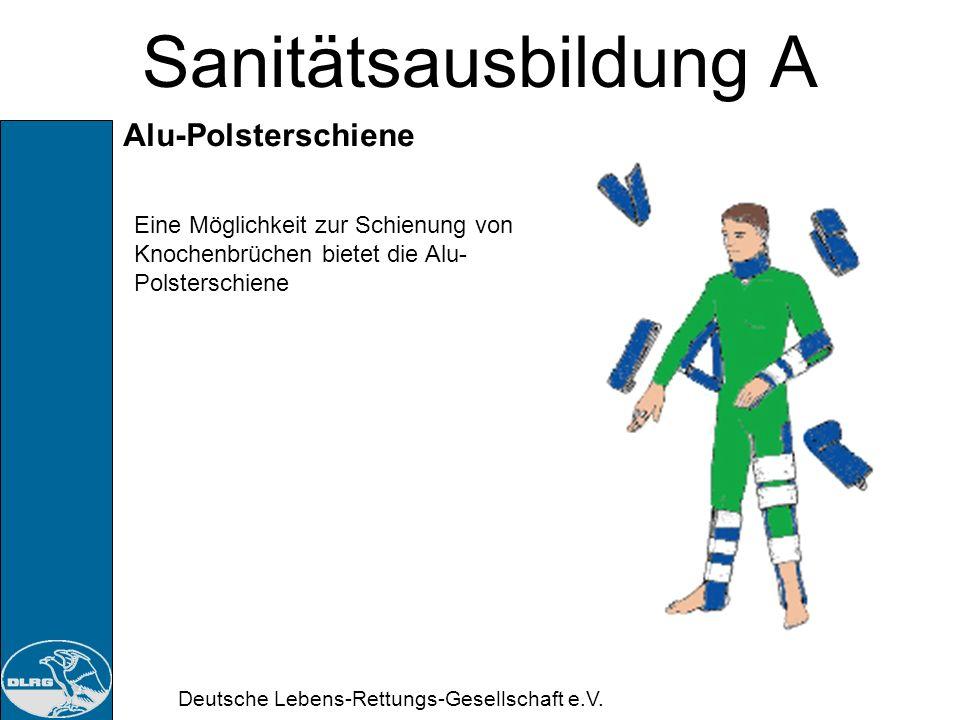 Deutsche Lebens-Rettungs-Gesellschaft e.V. Sanitätsausbildung A Knochenbruch (Fraktur): Maßnahmen: ansprechen, beruhigen Schockbekämpfung Bei offenen