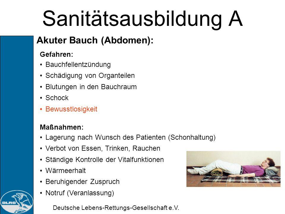 Deutsche Lebens-Rettungs-Gesellschaft e.V. Sanitätsausbildung A Akuter Bauch (Abdomen): Blinddarmentzündungen Darmverschluss Magengeschwür Gallen- und