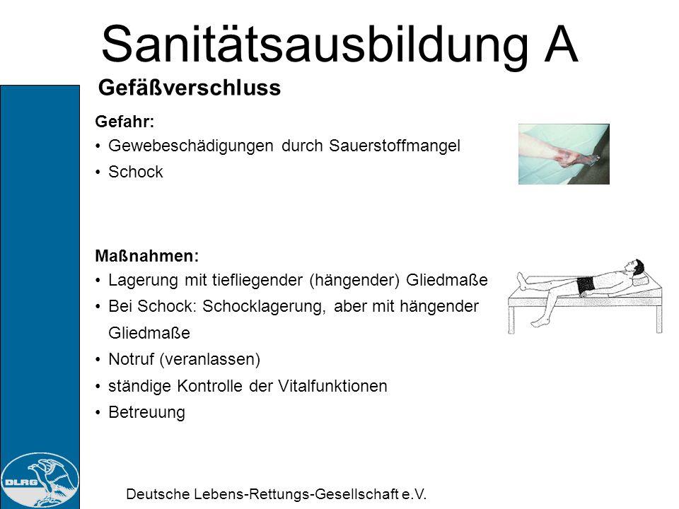Deutsche Lebens-Rettungs-Gesellschaft e.V. Sanitätsausbildung A Arterieller Gefäßverschluss Ursache: Arterienverkalkung Blutgerinnsel (arterieller Emb