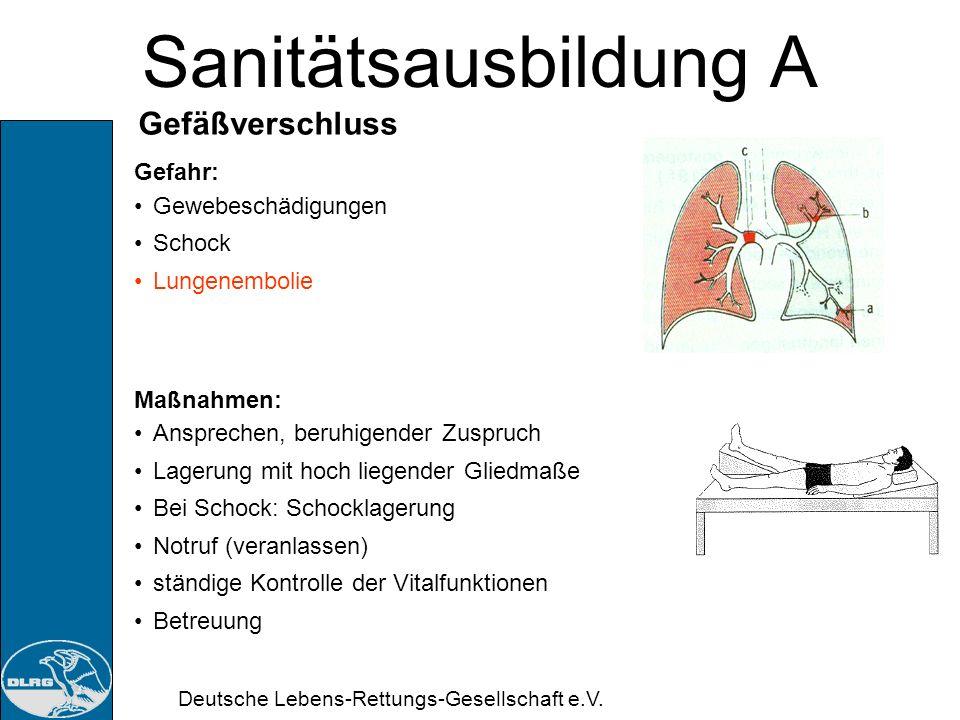 Deutsche Lebens-Rettungs-Gesellschaft e.V. Sanitätsausbildung A Venöser Gefäßverschluss Ursache: Arterienverkalkung Blutgerinnsel (venöser Thrombus) G