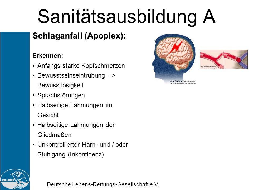 Deutsche Lebens-Rettungs-Gesellschaft e.V. Sanitätsausbildung A Schlaganfall (Apoplex): ist eine Durchblutungsstörung im Gehirn Vorübergehende / anhal