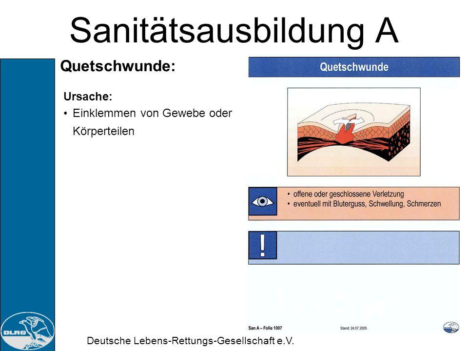 Deutsche Lebens-Rettungs-Gesellschaft e.V. Sanitätsausbildung A Risswunde: Ursache: Zerreisen des Gewebes durch Gewalteinwirkung
