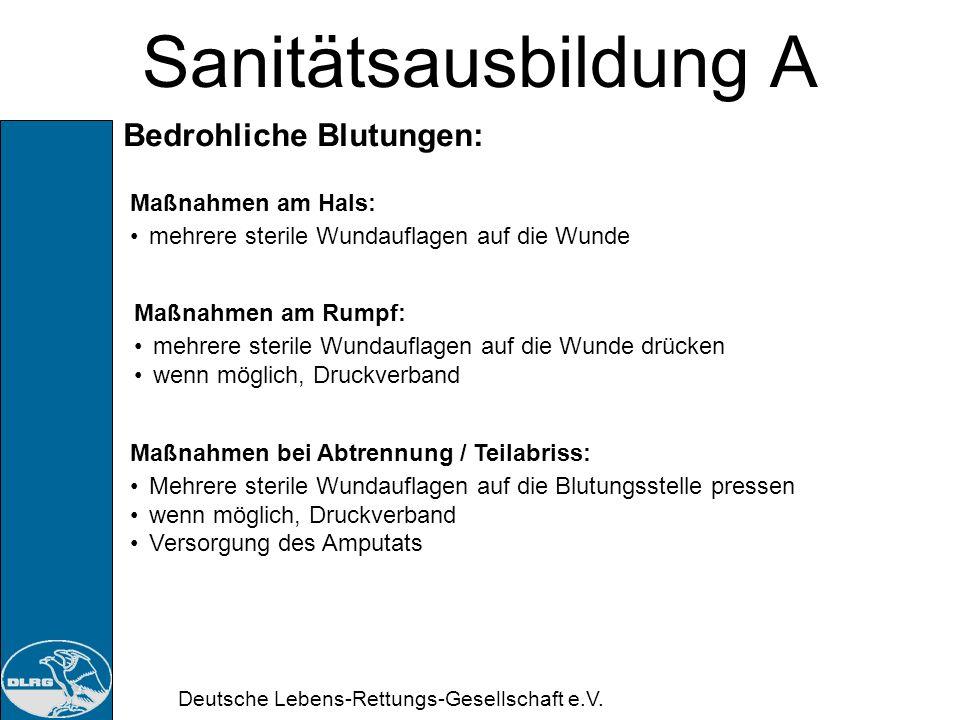 Deutsche Lebens-Rettungs-Gesellschaft e.V. Sanitätsausbildung A Bedrohliche Blutungen: Maßnahmen am Arm: Allgemeine Maßnahmen Abdrücken am hochgehalte
