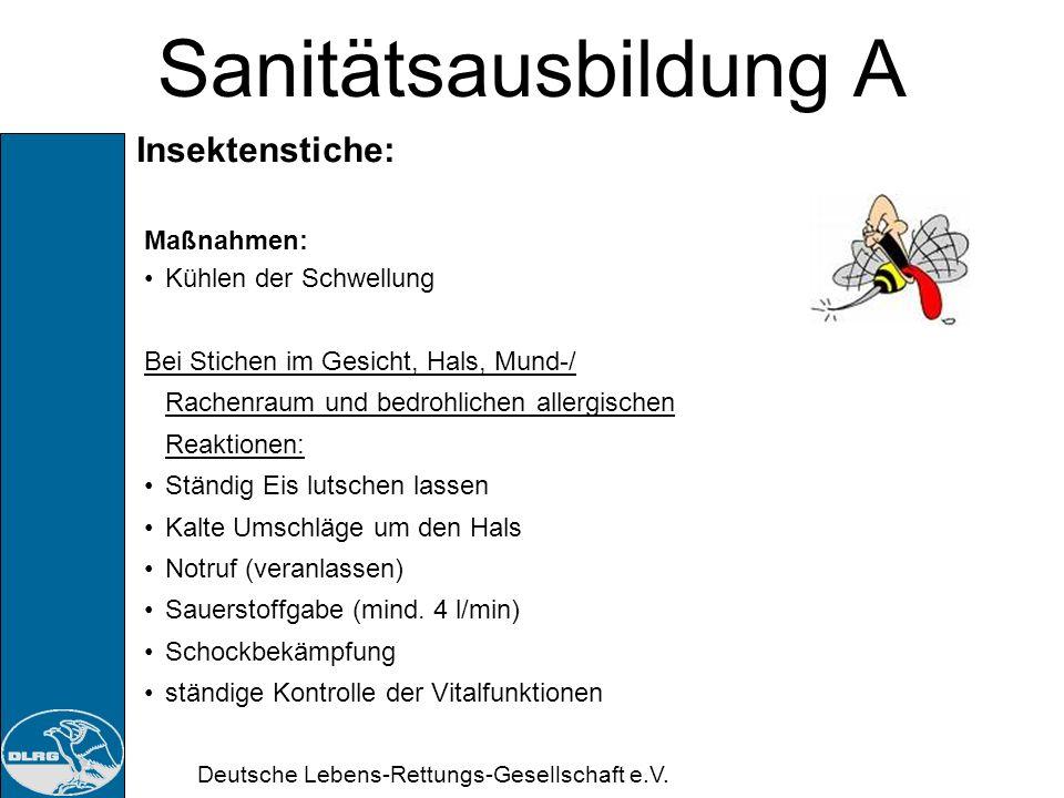 Deutsche Lebens-Rettungs-Gesellschaft e.V. Sanitätsausbildung A Verletzung durch Nesseltiere: Maßnahmen: Eigenschutz beachten (auch bei Toten Tieren)