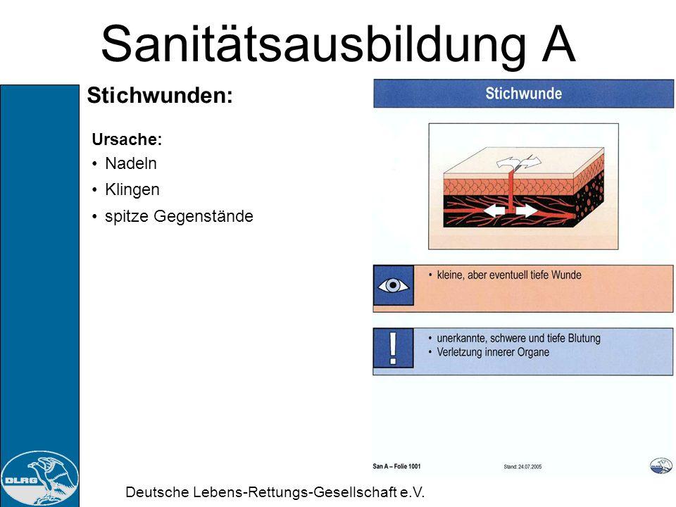 Deutsche Lebens-Rettungs-Gesellschaft e.V. Sanitätsausbildung A Wunden: Gefahren: Alle Wunden sind allgemein mit folgenden Gefahren verbunden Blutung