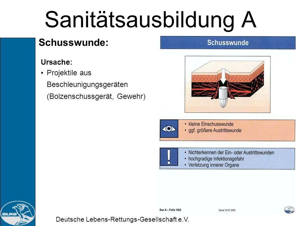 Deutsche Lebens-Rettungs-Gesellschaft e.V. Sanitätsausbildung A Stichwunden: Ursache: Nadeln Klingen spitze Gegenstände