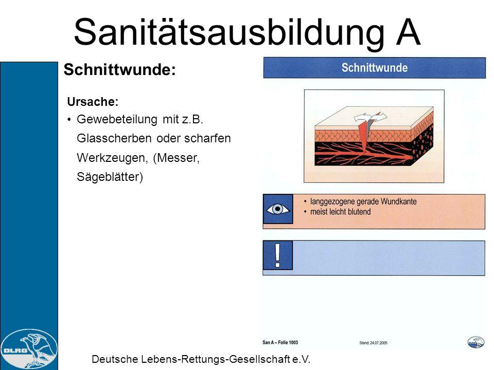 Deutsche Lebens-Rettungs-Gesellschaft e.V. Sanitätsausbildung A Schusswunde: Ursache: Projektile aus Beschleunigungsgeräten (Bolzenschussgerät, Gewehr