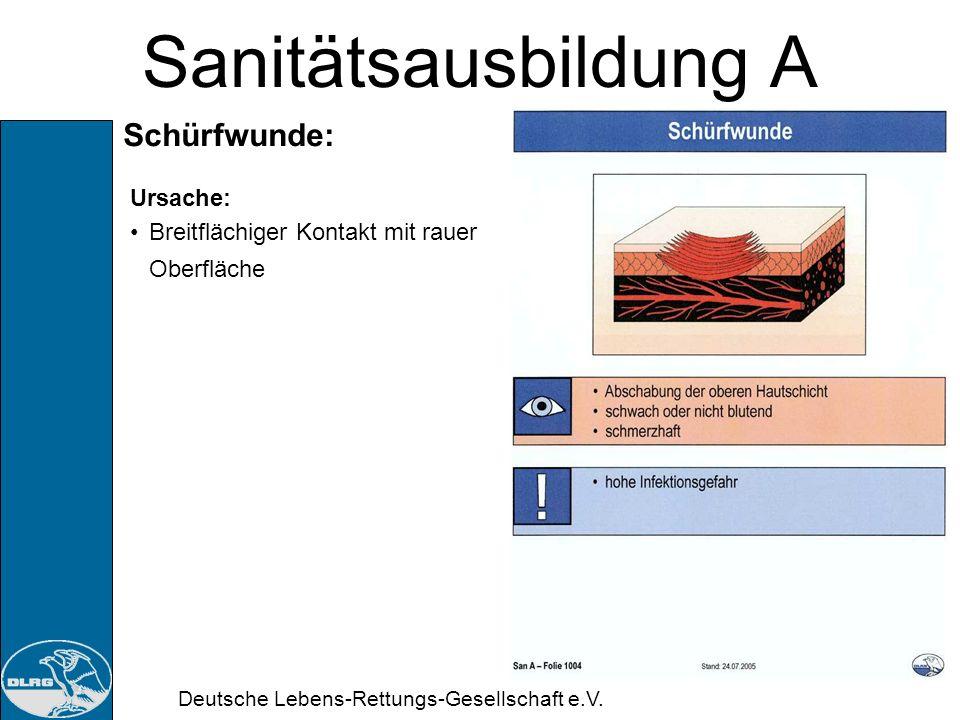 Deutsche Lebens-Rettungs-Gesellschaft e.V. Sanitätsausbildung A Schnittwunde: Ursache: Gewebeteilung mit z.B. Glasscherben oder scharfen Werkzeugen, (