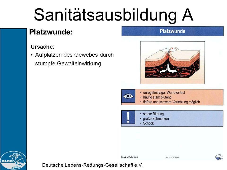 Deutsche Lebens-Rettungs-Gesellschaft e.V. Sanitätsausbildung A Schürfwunde: Ursache: Breitflächiger Kontakt mit rauer Oberfläche