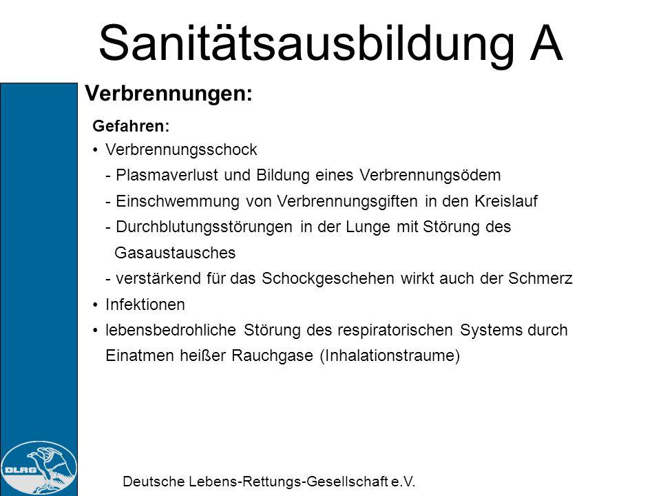 Deutsche Lebens-Rettungs-Gesellschaft e.V. Sanitätsausbildung A Verbrennungsgrade: Bestimmung flächenmäßige Ausdehnung: Neuner-Regel Bein Kinder versc