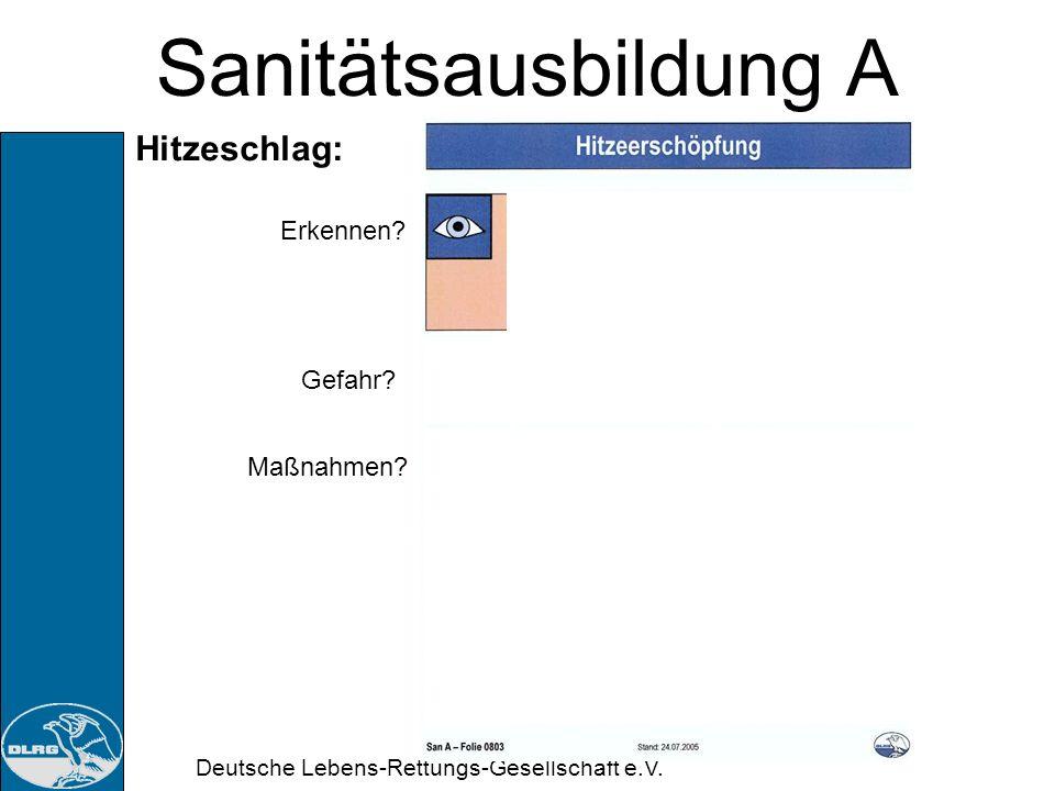 Deutsche Lebens-Rettungs-Gesellschaft e.V. Sanitätsausbildung A Hitzeerschöpfung: Durch Wasser- und Salzverlust aufgrund starken Schwitzen kann es zum