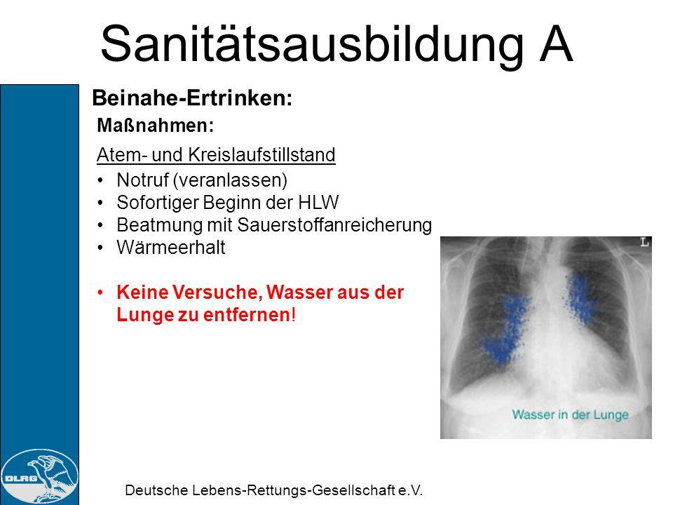 Deutsche Lebens-Rettungs-Gesellschaft e.V. Sanitätsausbildung A Beinahe-Ertrinken: Maßnahmen: ansprechbar – bei vollem Bewusstsein Notruf (veranlassen