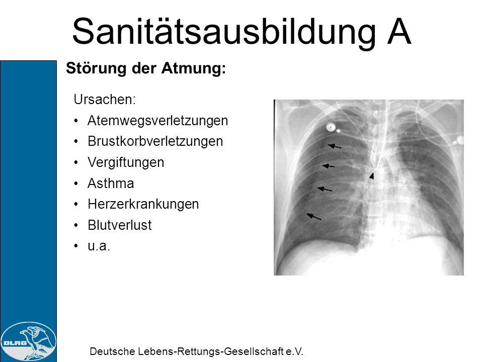 Deutsche Lebens-Rettungs-Gesellschaft e.V. Sanitätsausbildung A 5. Doppelstunde