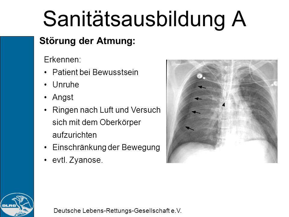 Deutsche Lebens-Rettungs-Gesellschaft e.V. Sanitätsausbildung A Störung der Atmung: Ursachen: Atemwegsverletzungen Brustkorbverletzungen Vergiftungen