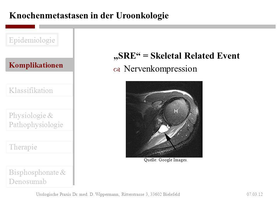Knochenmetastasen in der Uroonkologie 07.03.12Urologische Praxis Dr. med. D. Wippermann, Ritterstrasse 3, 33602 Bielefeld SRE = Skeletal Related Event
