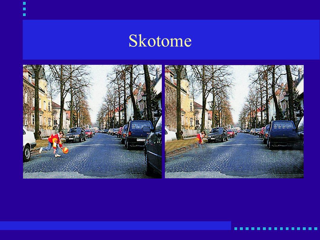 Skotome