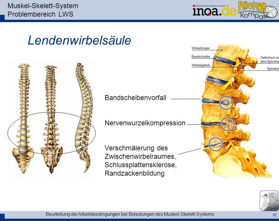 Beurteilung der Arbeitsbedingungen bei Belastungen des Muskel-Skelett-Systems 10 Muskel-Skelett-System Problembereich LWS Lendenwirbelsäule Bandscheib