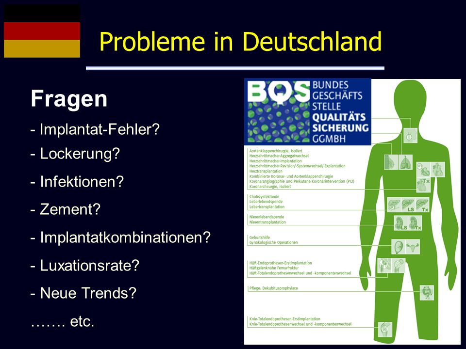 Probleme in Deutschland Fragen - Implantat-Fehler? - Lockerung? - Infektionen? - Zement? - Implantatkombinationen? - Luxationsrate? - Neue Trends? …….