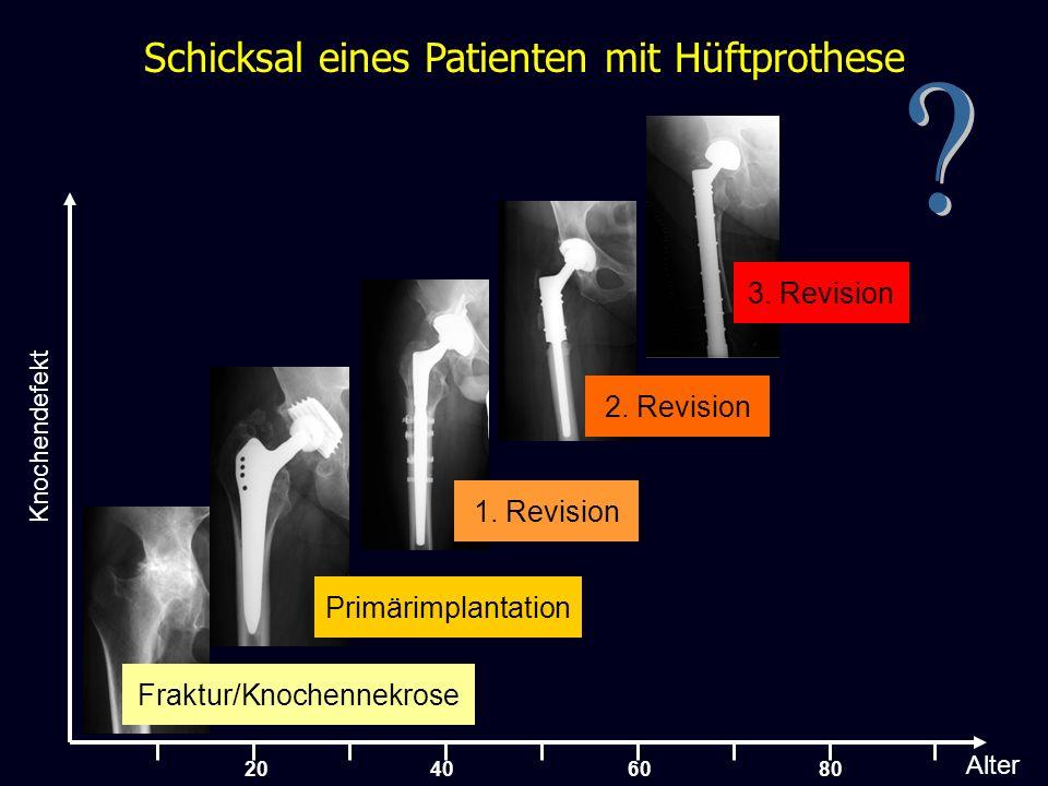 25 … eine geringe Anzahl der Hüft- pfannen wurden in Schweden eingesetzt Nach 40 Implantationen und 5 Revisionen: Signifikanz im Swedischen Hüft Register