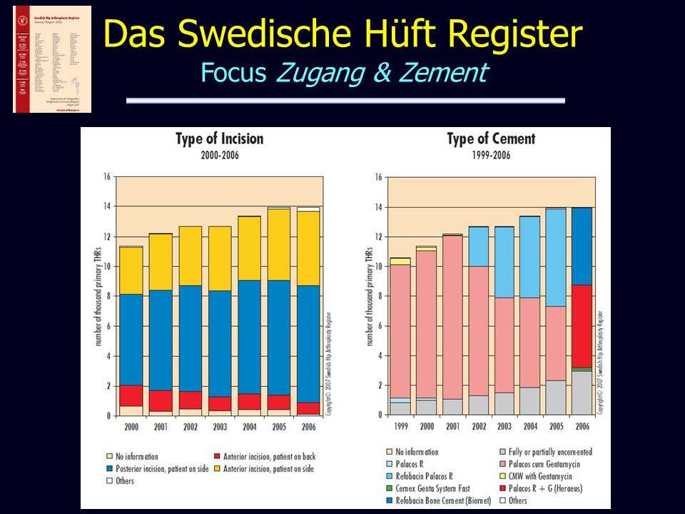 Das Swedische Hüft Register Focus Zugang & Zement