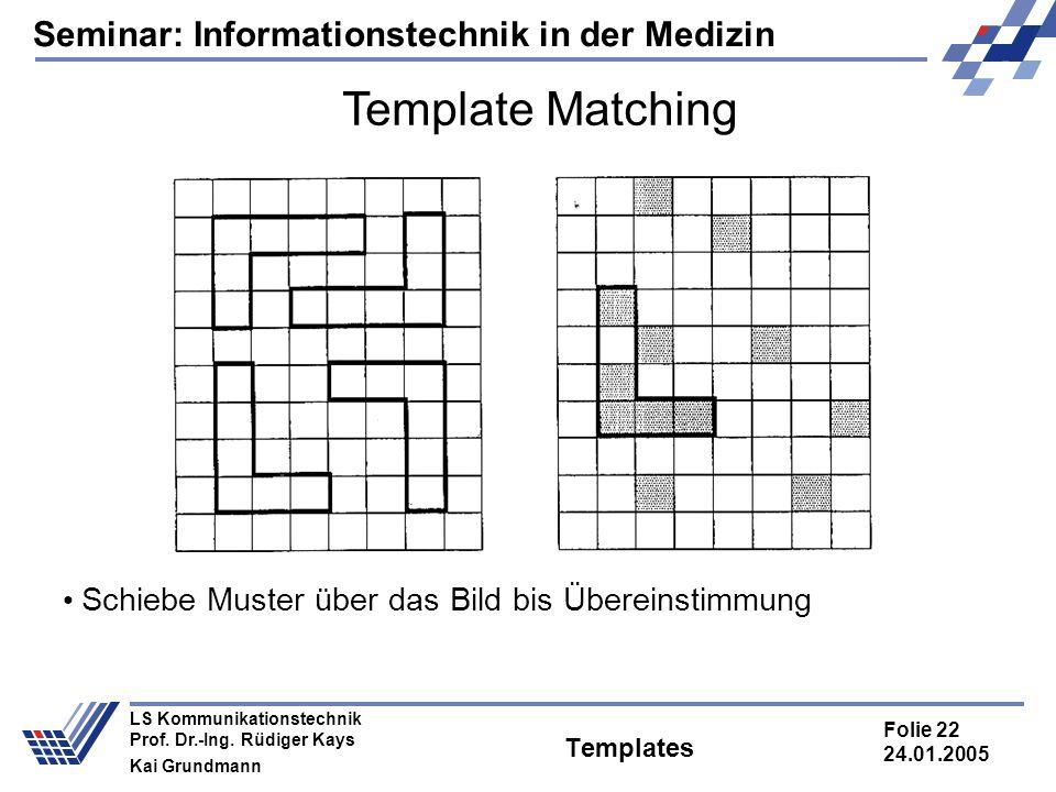 Seminar: Informationstechnik in der Medizin Folie 22 24.01.2005 LS Kommunikationstechnik Prof. Dr.-Ing. Rüdiger Kays Kai Grundmann Templates Template