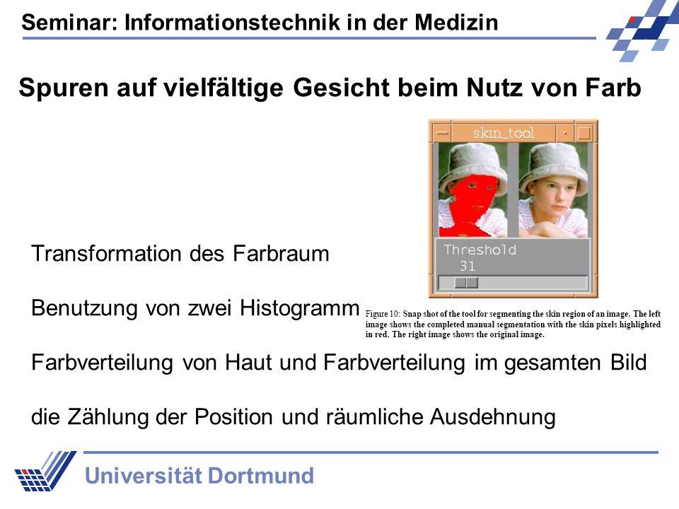 Seminar: Informationstechnik in der Medizin Universität Dortmund Histogramm der Farbmodelle Zwei Faktoren: Auswahl des Farbraums und die Größe des Histogramms Wie viele Bits pro Kanal (R,G,B)
