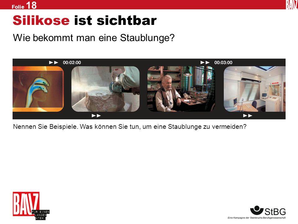 Folie 17 Das Röntgenmobil Mit der Staublungenkrankheit ist nicht zu spaßen. Und weil Vorsorge die beste Medizin ist, gibt es bei der Steinbruchs- Beru