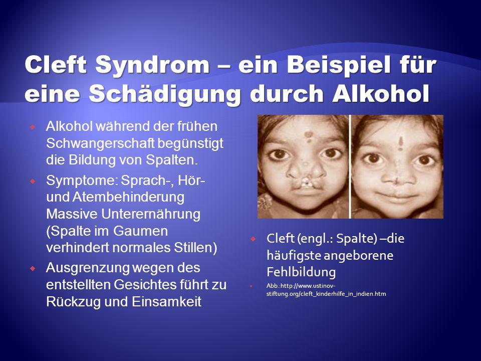 Alkohol während der frühen Schwangerschaft begünstigt die Bildung von Spalten. Symptome: Sprach-, Hör- und Atembehinderung Massive Unterernährung (Spa