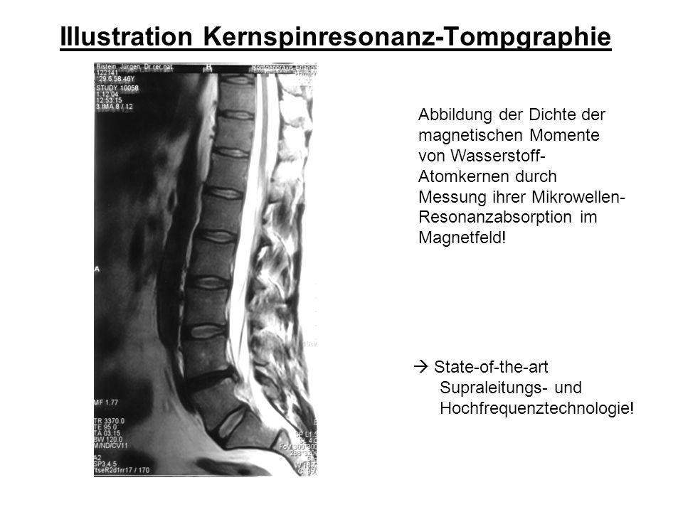 Illustration Kernspinresonanz-Tompgraphie 3d-Rekonstruktion aus Schichtschnitt-Information.
