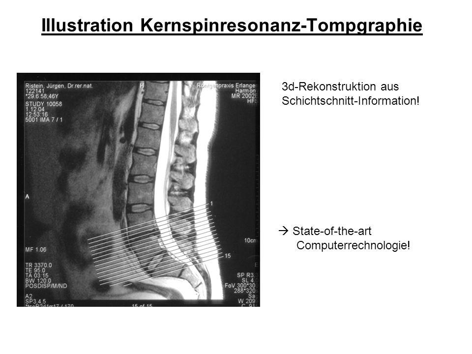 Bildgebung mittels Kernspinresonanz (Magnetresonanztomographie, MRT) Beachte die Ortsauflösung der Methode!