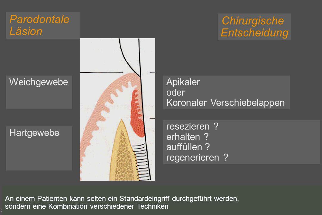 © bruckmann & durstberger paro - wien 2004 Parodontale Läsion Chirurgische Entscheidung Apikaler oder Koronaler Verschiebelappen Weichgewebe Hartgewebe resezieren .